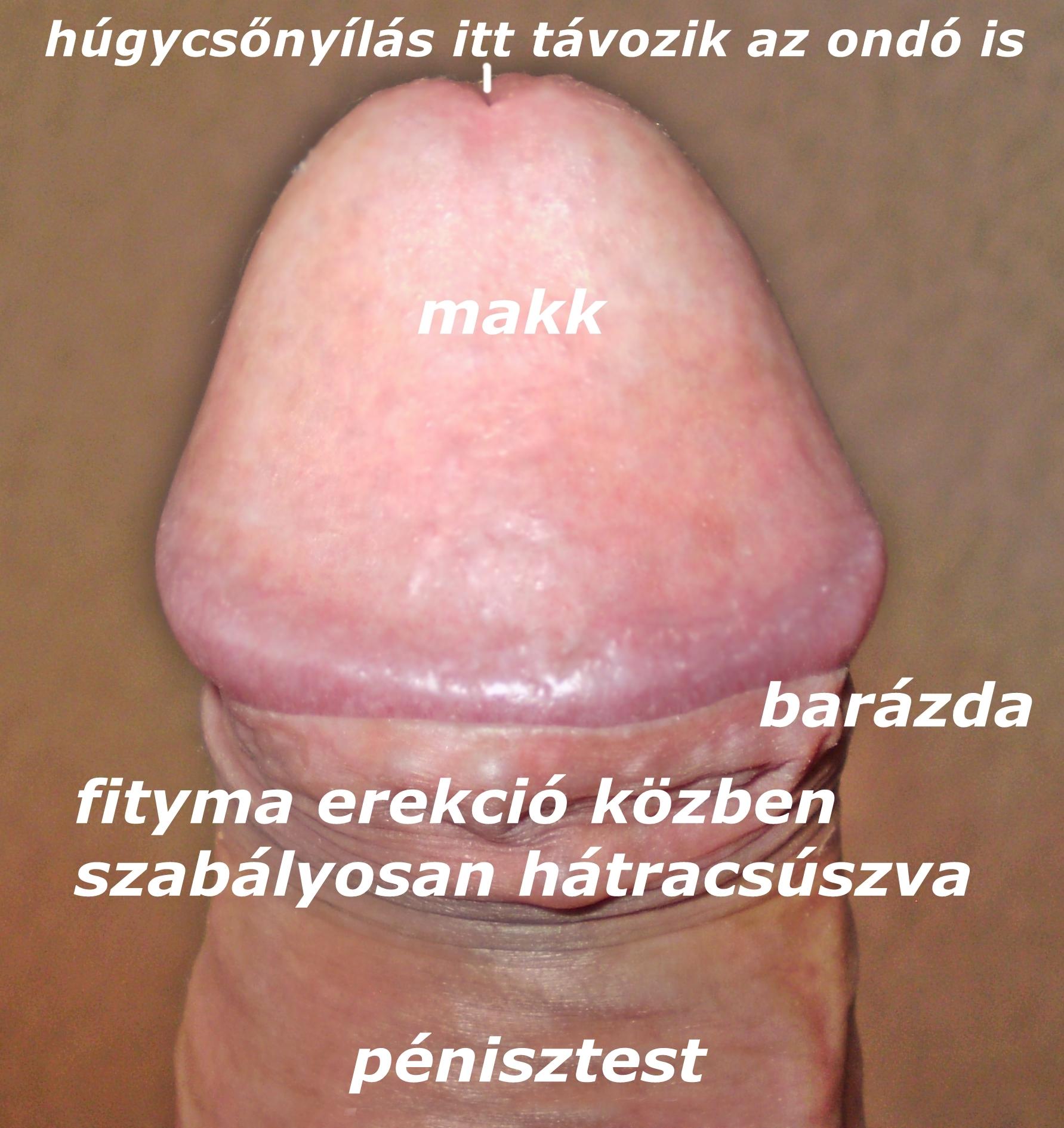 a férfi nem kap péniszt késleltetett férfi erekció